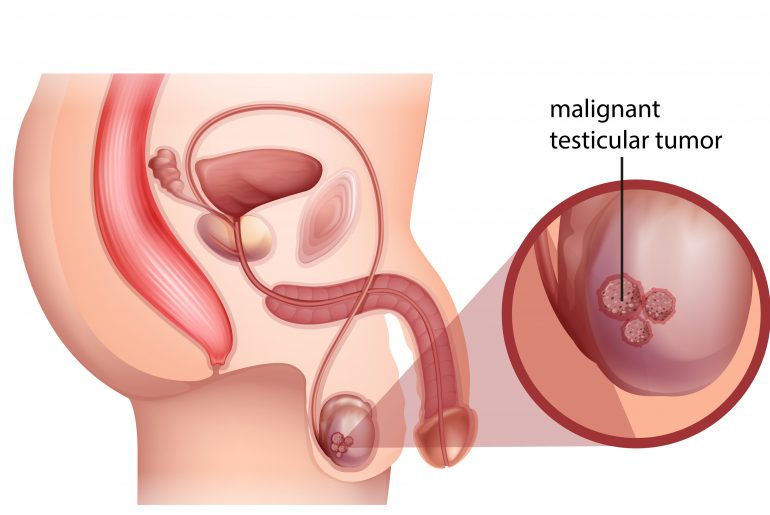 Testicular cancer treatment and signs