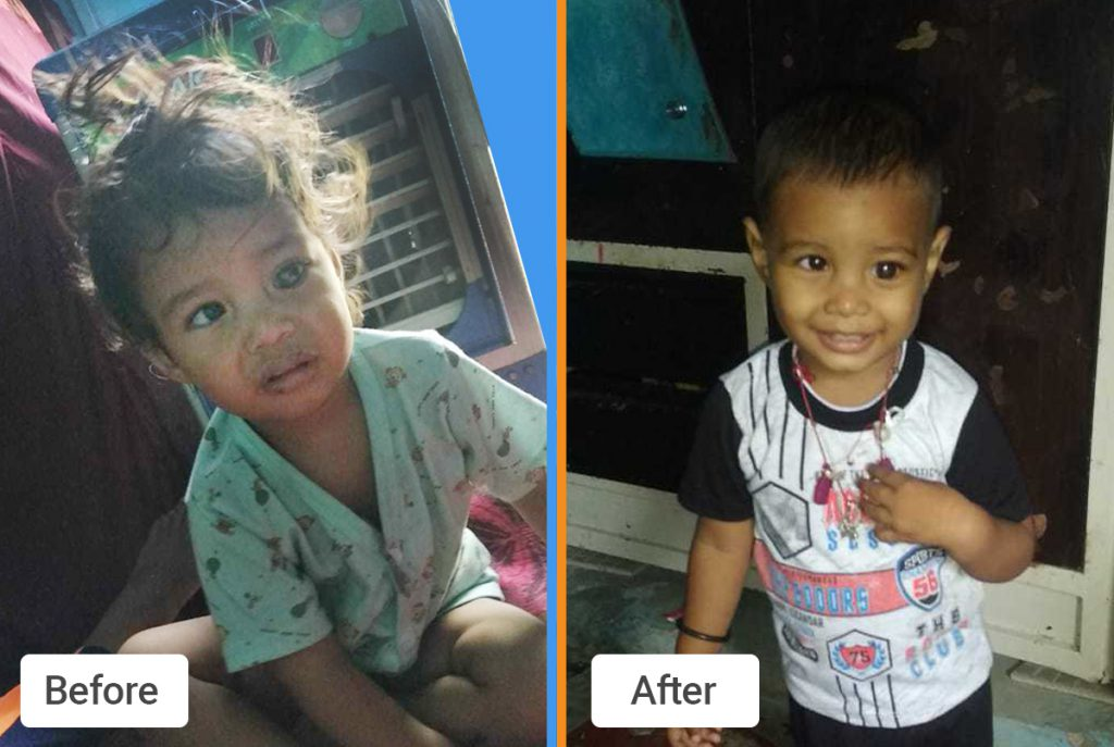 Chirag before and after treatment