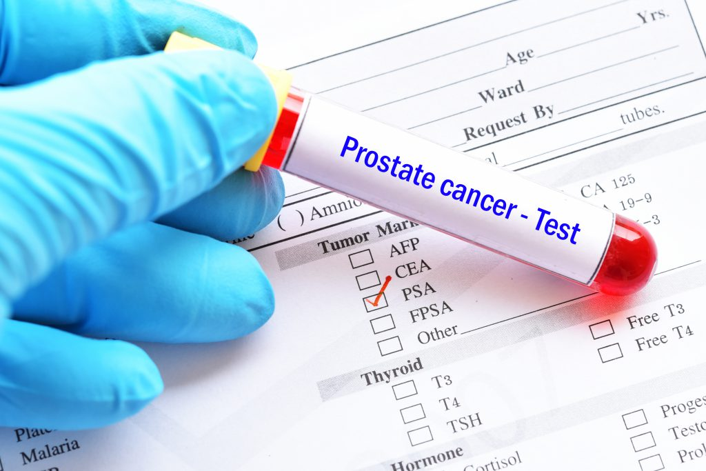 Prostate cancer blood test