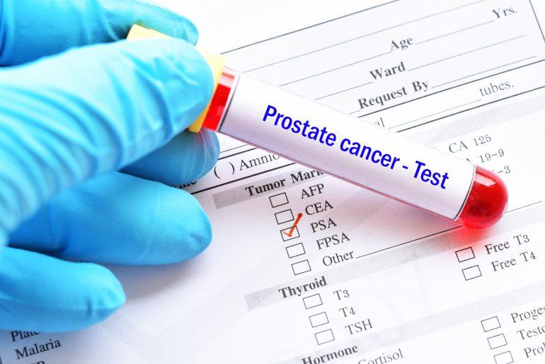Prostate cancer blood test