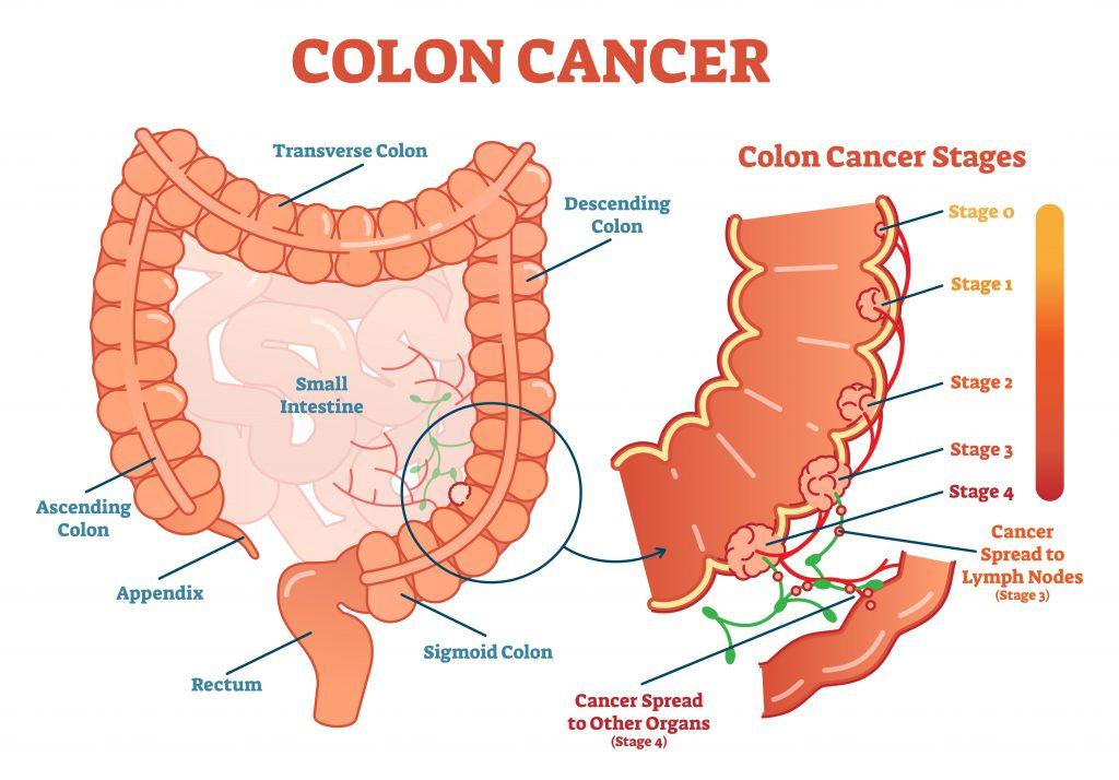 Recent Advances In Colon Cancer Treatment Onco Com