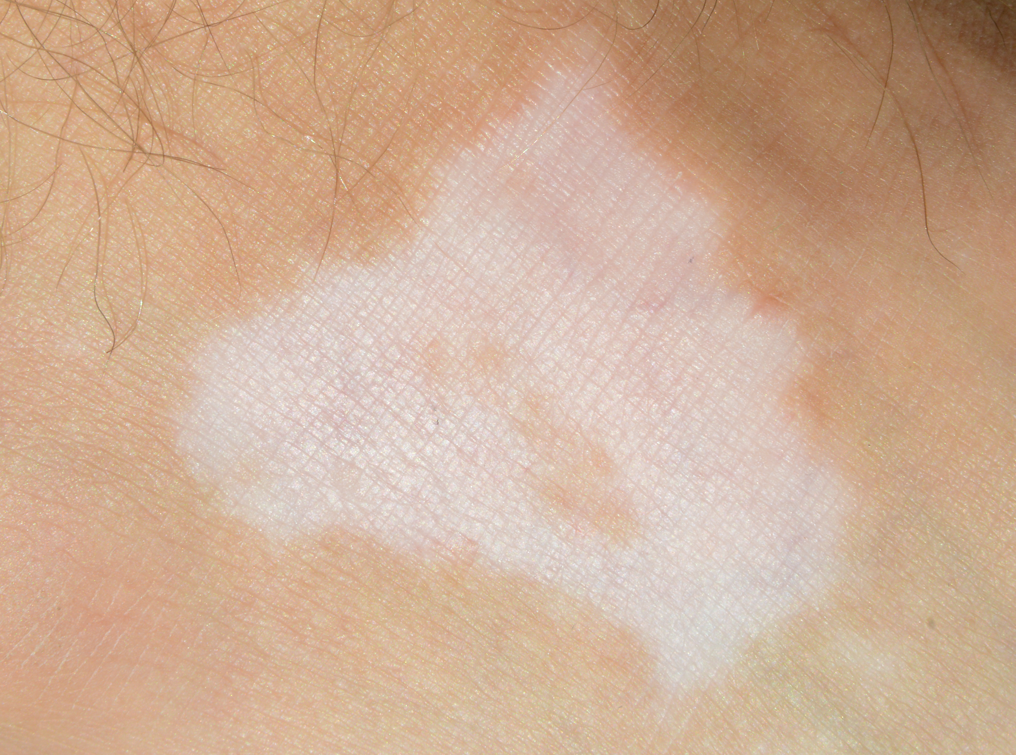 loss of skin pigmentation due to immunotherapy
