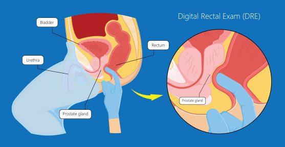 cancer screening prostate cancer