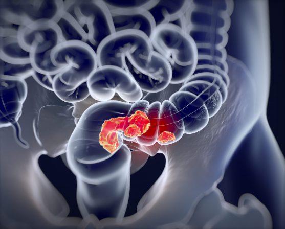 कोलोरेक्टल कैंसर कोलन या मलाशय (Rectum) में शुरू होता है।