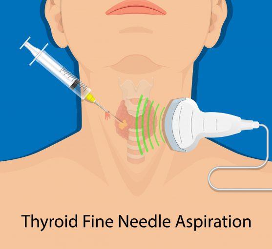 FNAC for thyroid