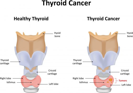 thyroid lump