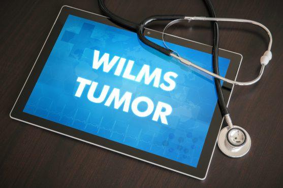 विल्म्स का ट्यूमर अक्सर केवल एक किडनी में होता है, हालांकि यह कभी-कभी एक ही समय में दोनों किडनी में पाया जा सकता है।