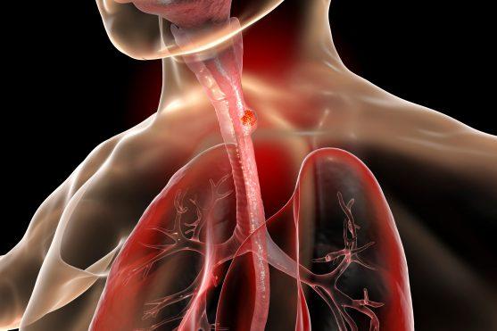 आहार नली एक ट्यूब है जो हमारे मुंह से होकर पेट तक जाती है।