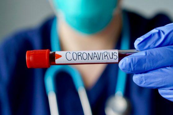 कई मरीज जो पॉजिटिव आते हैं उनमें कई बार लक्षण नहीं दिखे हैं। ऐसे स्पर्शोन्मुख (asymptomatic) लोगों में भी वायरस रहता है और सावधानी न बरतने पर वह इसे दूसरों में फैला सकते हैं।