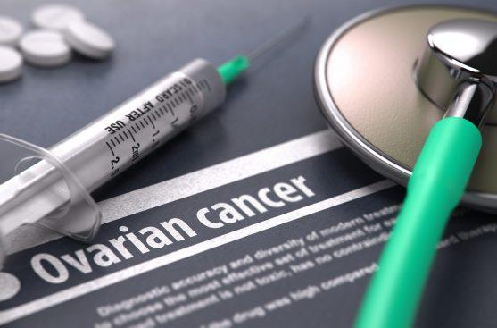 यदि आपके डॉक्टर को लगता है कि आपको ओवेरियन कैंसर है, तो वे संभवत: एक पेल्विक परीक्षण की सिफारिश करेंगे