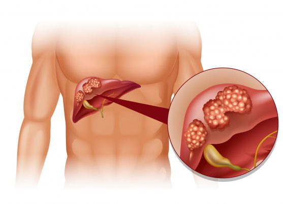 liver cancer blood test AFP