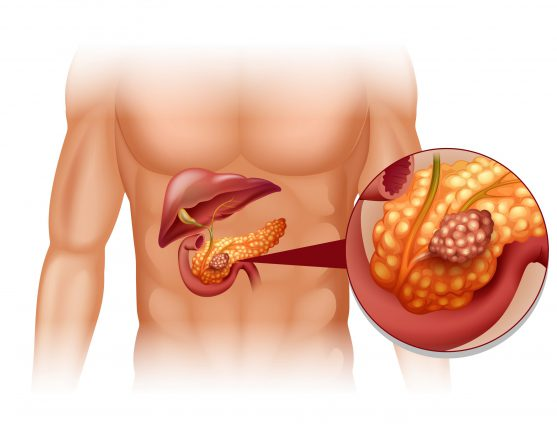 CA 19-9 pancreatic cancer blood test