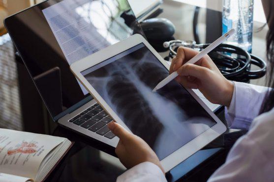 फेफड़ों का कैंसर अक्सर हवा में रसायनों और अन्य कणों के संपर्क में आने के कारण होता है।