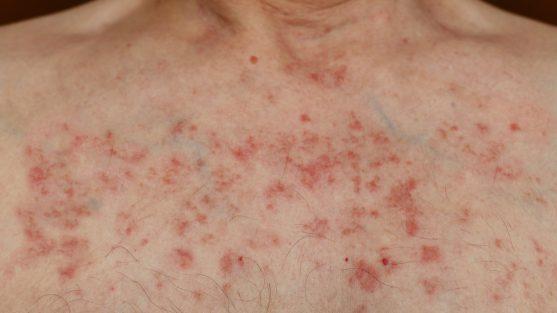 skin rashes from chemo