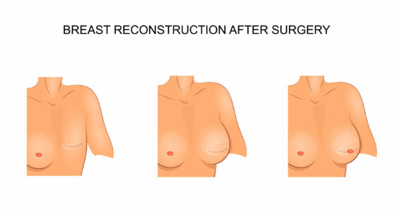 after breast cancer surgery